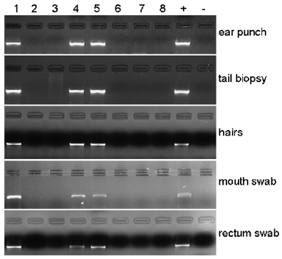 various dna extractions