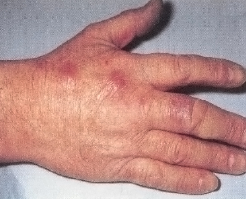 Hand with mycobacterium marinum infections